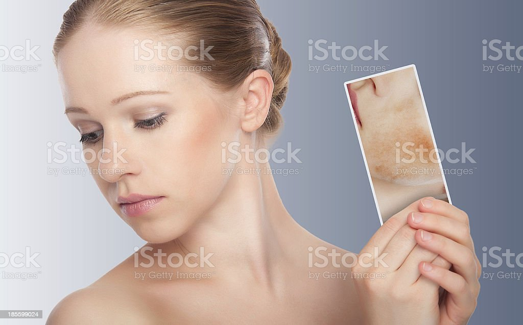 concept skincare . Skin of beauty young woman with redness, stock photo