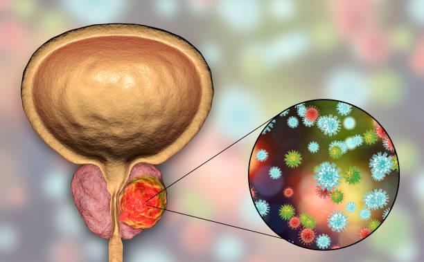 conceptuele afbeelding voor virale ethiology van prostaatkanker - prostaatkanker stockfoto's en -beelden