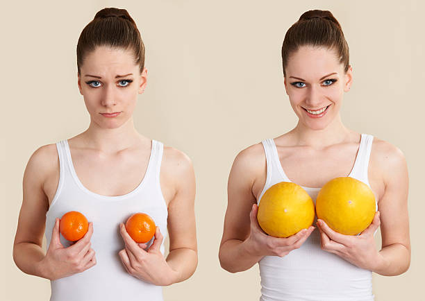 Imagen Conceptual para ilustrar la ampliación de la cirugía de mama. - foto de stock