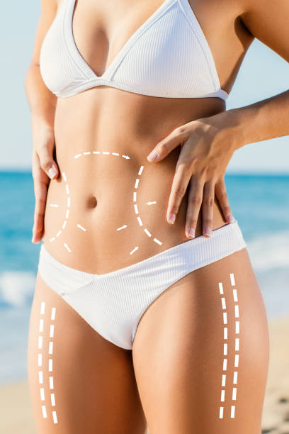 Conceptual liposculpture with surgical body contouring lines. stock photo