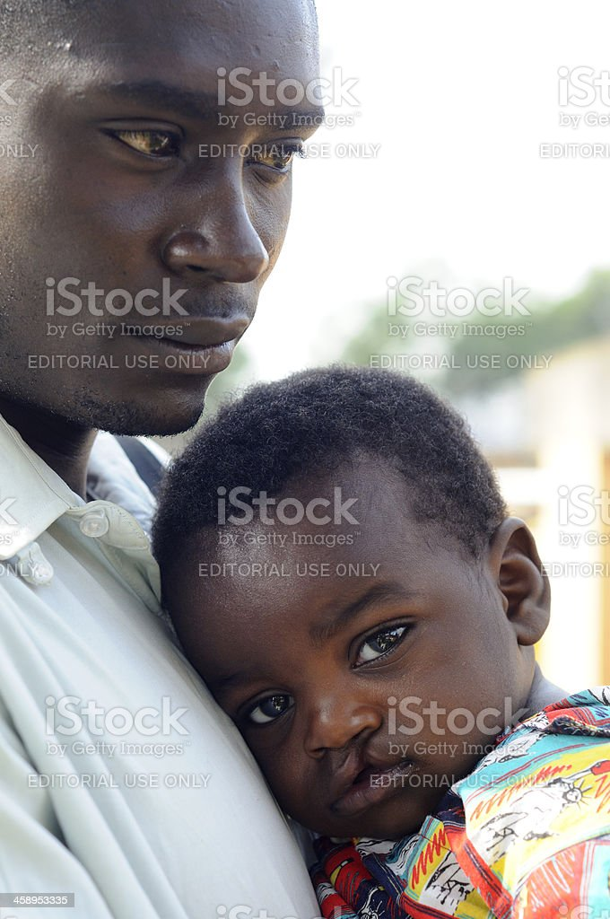 Concerned parent with cleft-palate child royalty-free stock photo