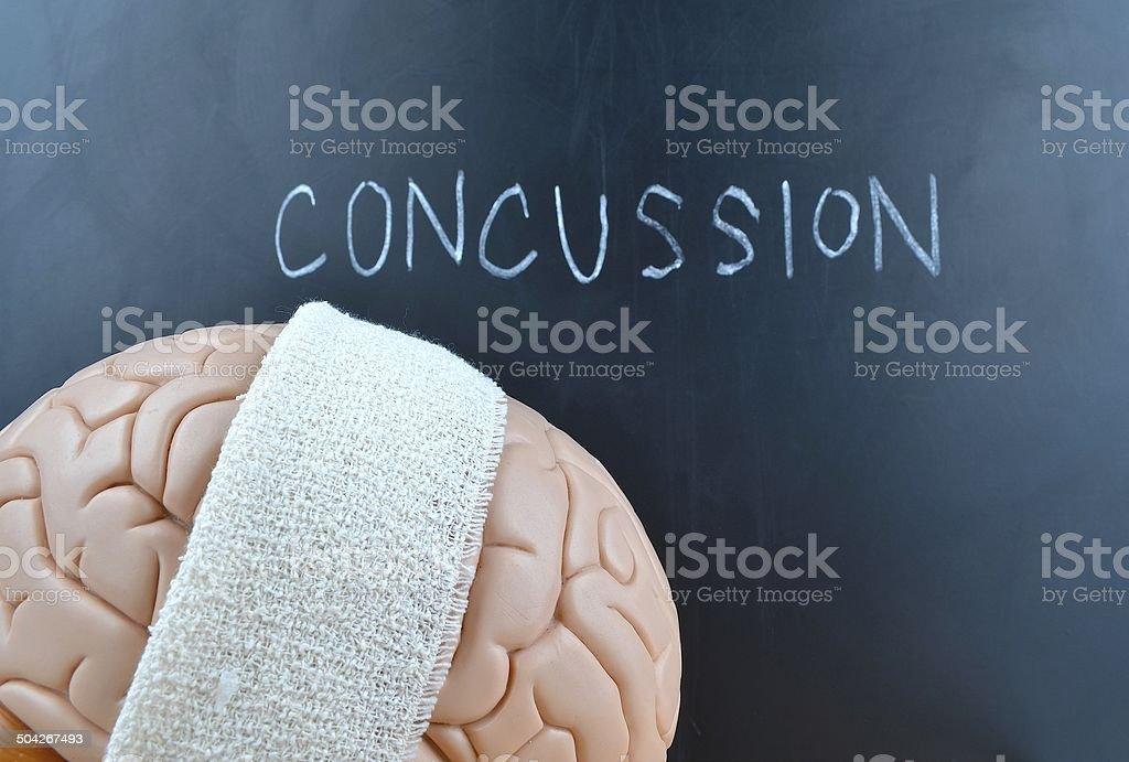 Concussion stock photo