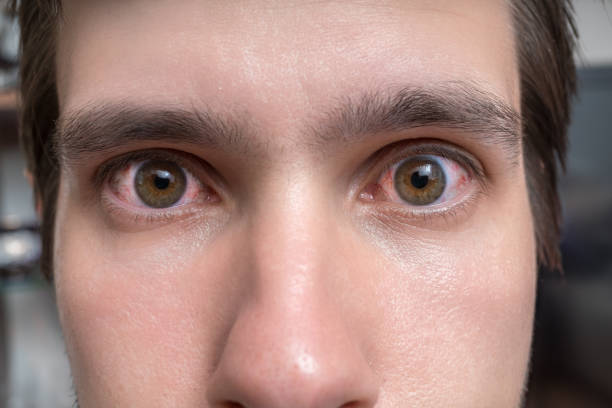 Conjunctivitis or irritation of sensitive eyes. Close-up view on red eyes of a man. stock photo