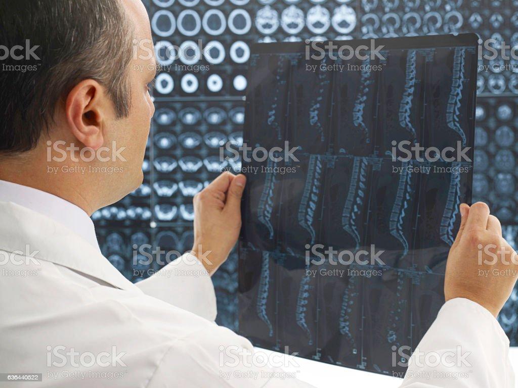 MRI consultation stock photo