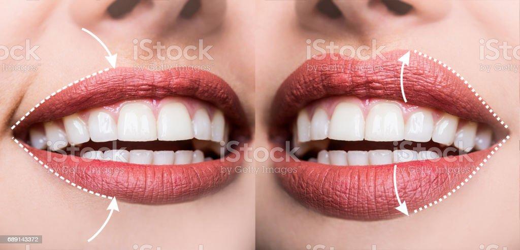 Aumento plástico, contorno de los labios, rellenar arrugas, cambia el volumen de la forma de labios, rejuvenecimiento de labio superior. Inyecciones de ácido hialurónico para los labios sexy. Salón de belleza o cirujano plástico - foto de stock
