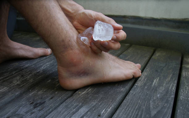 cooling a swollen injured ankle with ice - slogatura foto e immagini stock