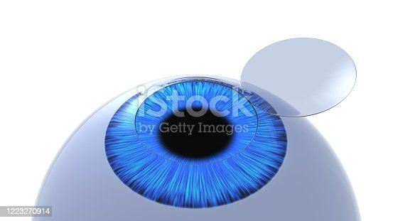 istock Corneal flap eye illustration. Isolated on white. 3D-rendering. 1223270914