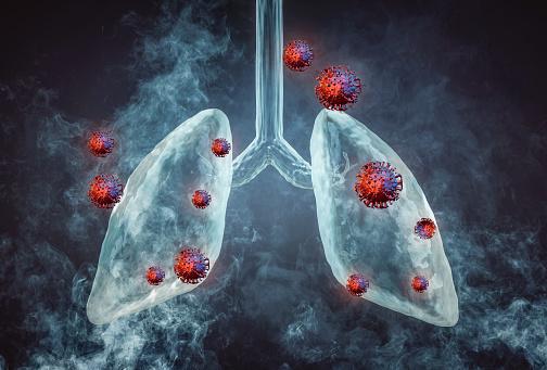 Corona Virus Lung Lung Disease