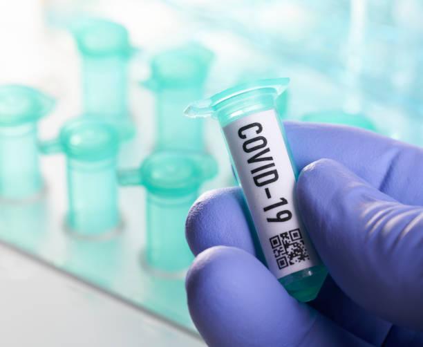 Coronavirus: Durchstechflasche mit Coronavirus, covid-19 – Foto