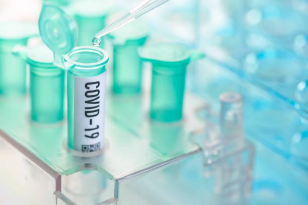 virus corona: vial con pipeta en laboratorio - covid 19 fotografías e imágenes de stock