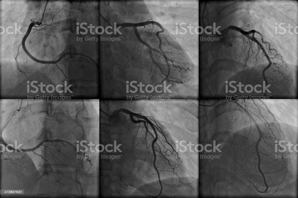 angiography coronário - foto de acervo