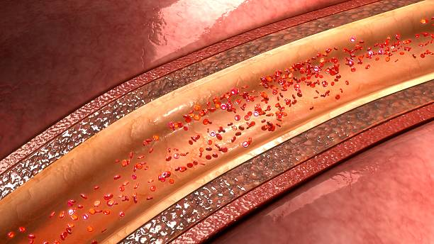 Coronary arteries stock photo