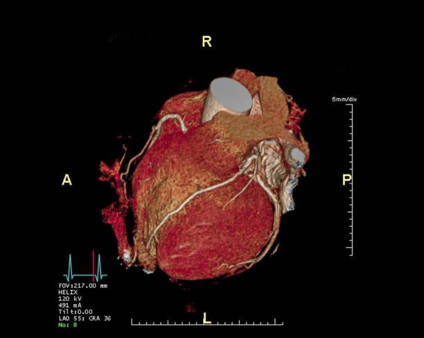 CTA Coronary Artery 3D Rendering Bild. CT-Angiographie für Herz-Vessel-Krankheit. – Foto