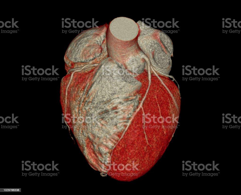 3d Coronary Artery Anatomy Diagram Web About Wiring Diagram