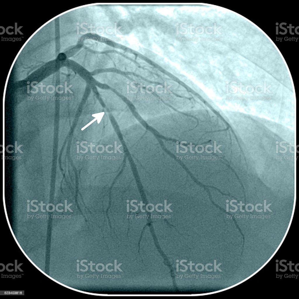 Artéria coronária doença - foto de acervo