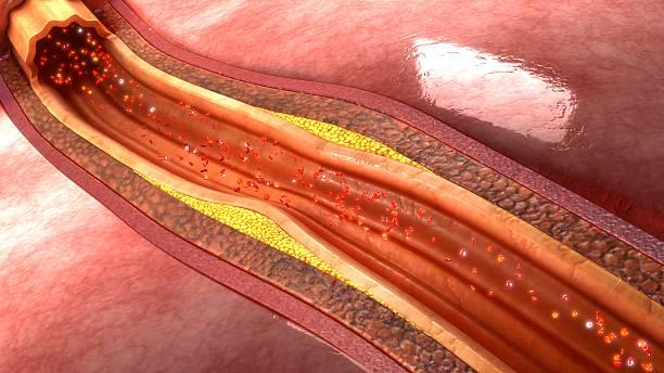 Coronary artery plaque stock photo