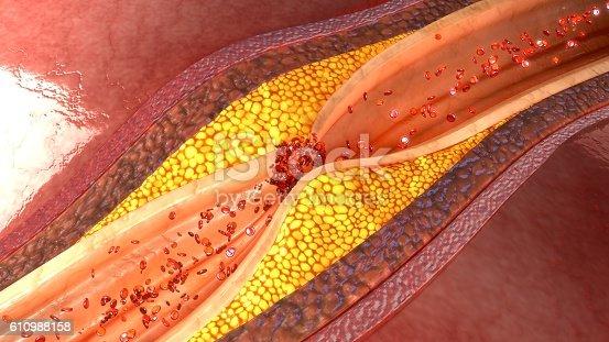 istock coronary artery plaque 610988158