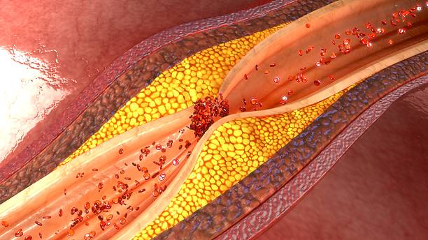 coronary artery plaque stock photo