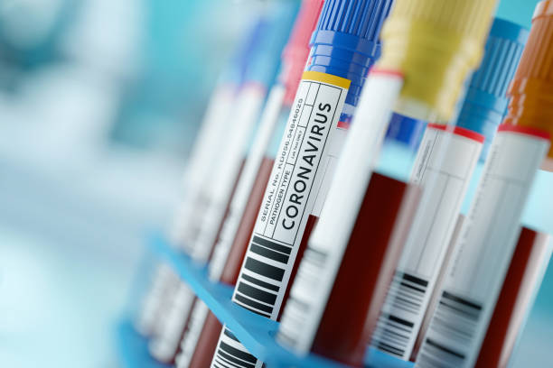 Coronavirus 2019-nCoV Blood Samples Medical Concept stock photo