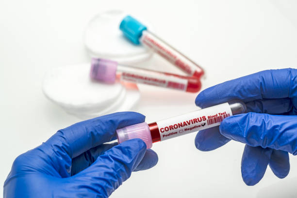 Coronavirus blood test .  Coronavirus negative blood in laboratory. Coronavirus blood test .  Coronavirus negative blood in laboratory. negative emotion stock pictures, royalty-free photos & images