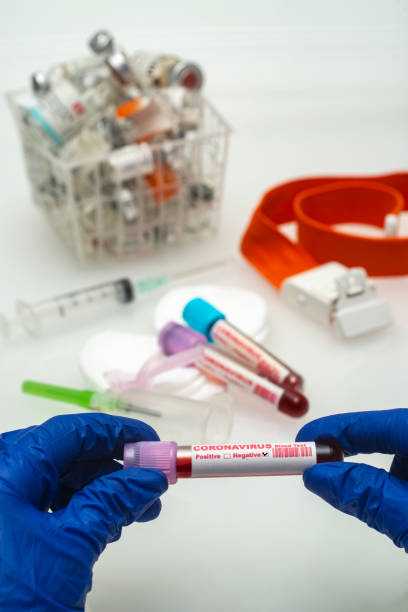 Coronavirus blood test .  Coronavirus negative blood in laboratory. stock photo