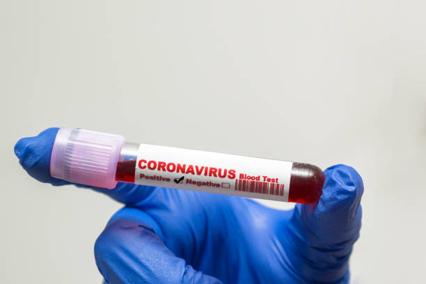 Coronavirus blood test .  Coronavirus positive blood in laboratory. 2019-nCoV Coronavirus originating in Wuhan, China stock photo