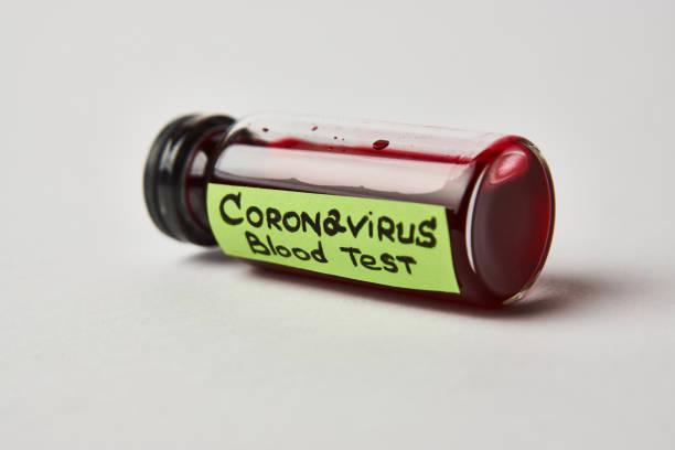 在白色背景上進行冠狀病毒血液測試,帶有複製空間。圖像檔