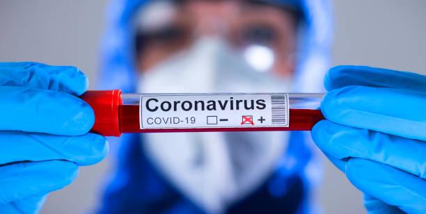 Coronavirus COVID 19 Test neuartiger Corona-Ausbruch – Foto