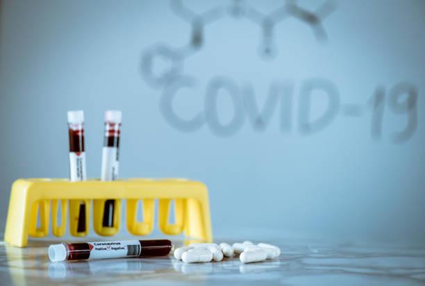 Coronavirus disease (COVID-19) - treatment ideas stock photo