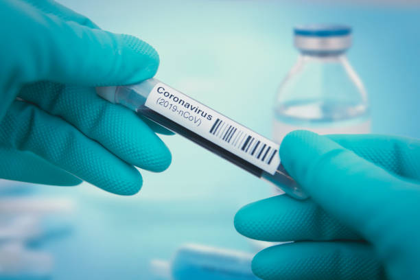 coronavirus test - covid 19 stock pictures, royalty-free photos & images