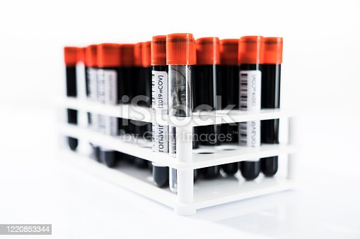 Blood samples medical test tubes With Covid-19 label, American dollar banknote in test tube.