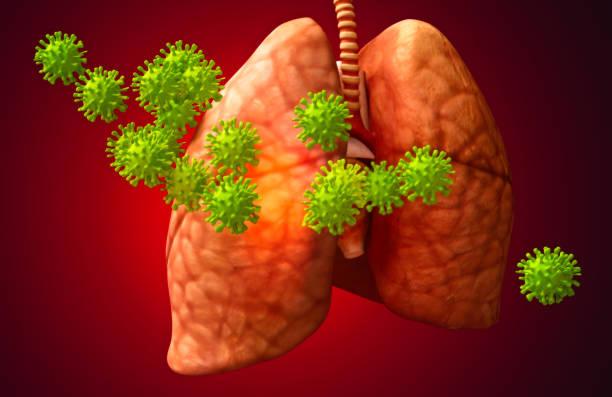 Coronavirus-Virus und Lunge – Foto