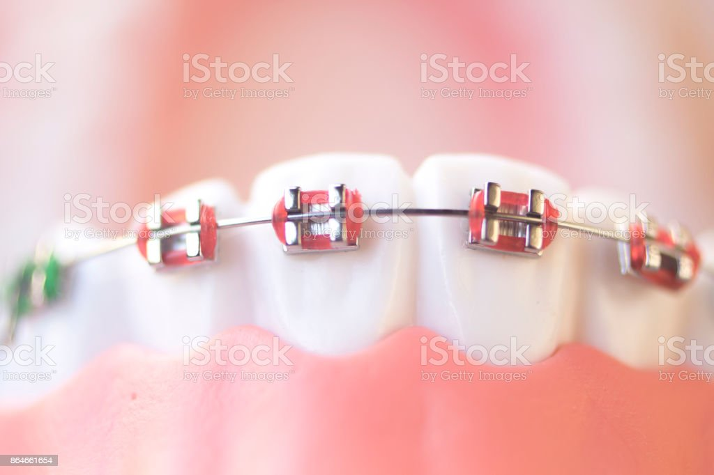 cosmetic dentistry orthodontics dental metal wire teeth brackets teaching student model royalty free stock