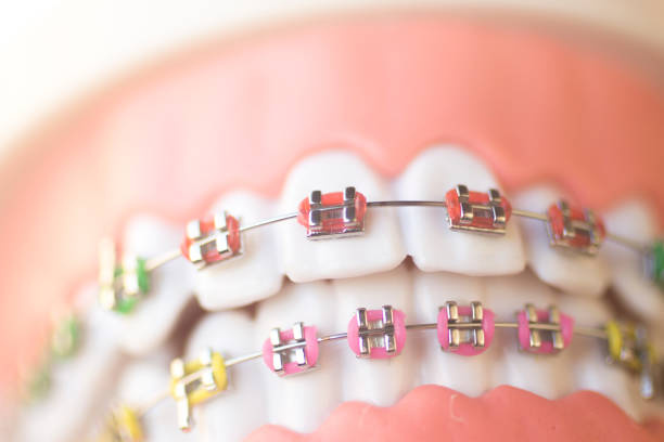 Cosmetic dentistry orthodontics dental metal wire teeth brackets teaching student model. stock photo
