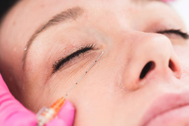 Cosmetic dermal fillers with cannulas stock photo