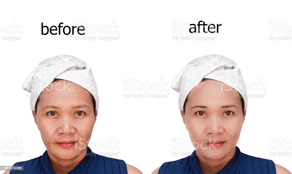 Kosmetische – Foto