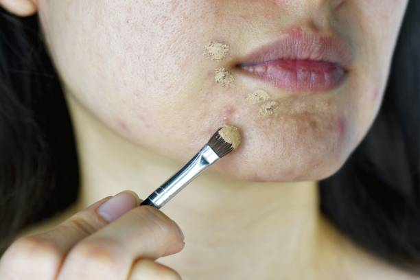 Cosmetics acne, Asian woman applying concealer makeup to hide acne facial skin problem, Pimples correcting coverage. stock photo