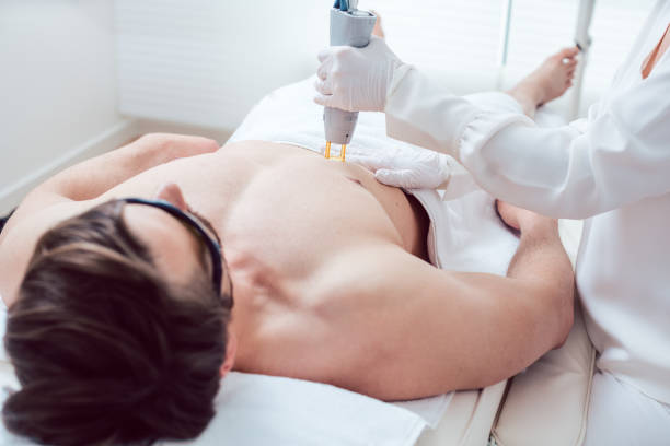 Cosmetologist using laser to remove chest hair of man stock photo