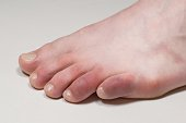 istock Covid toes. Coronavirus symptoms - swelling and discoloration, purplish color, pain and rough skin. 1305758191