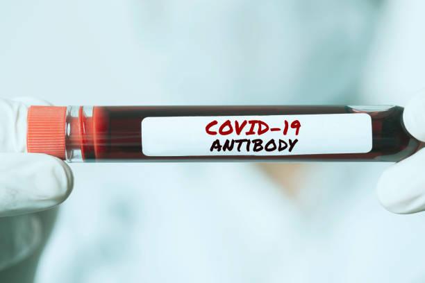 covid-19 antibody - anticorpo foto e immagini stock