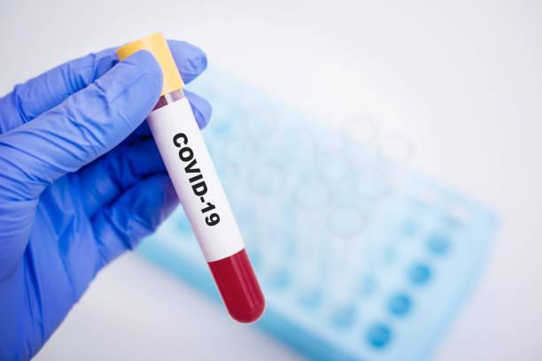 실험실 배경에 Covid-19 혈액 샘플 스톡 사진