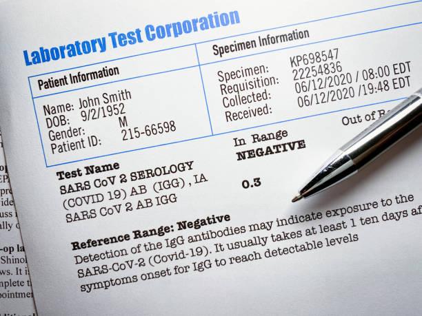 Covid-19 laboratory test report stock photo