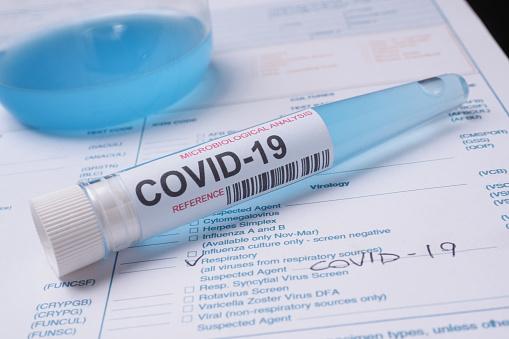 Covid19 Test Tube - Fotografie stock e altre immagini di Analizzare