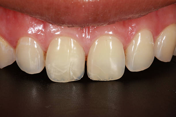 crack tooth stock photo