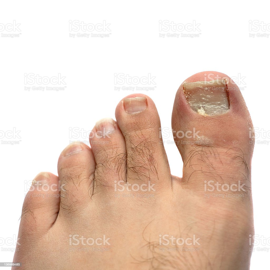 Cracked Fungus Toe Nail stock photo