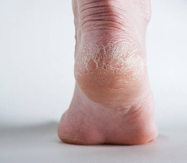 cracked heel on human foot - human foot stock photos and pictures