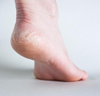 Rissige Fersen Auf Menschliche Fuß Seitenansicht Stockfoto und mehr Bilder von Achilleus