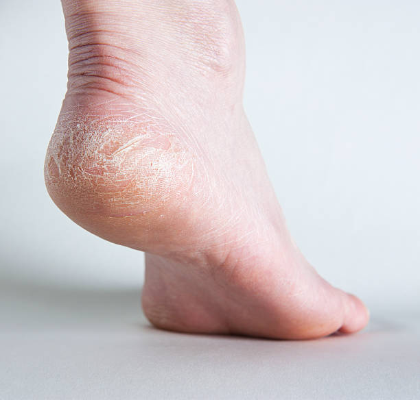 cracked heel on human foot, side view. - human foot stock photos and pictures