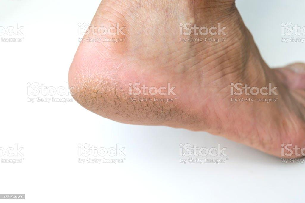 Cracked heel on isoleted background. stock photo