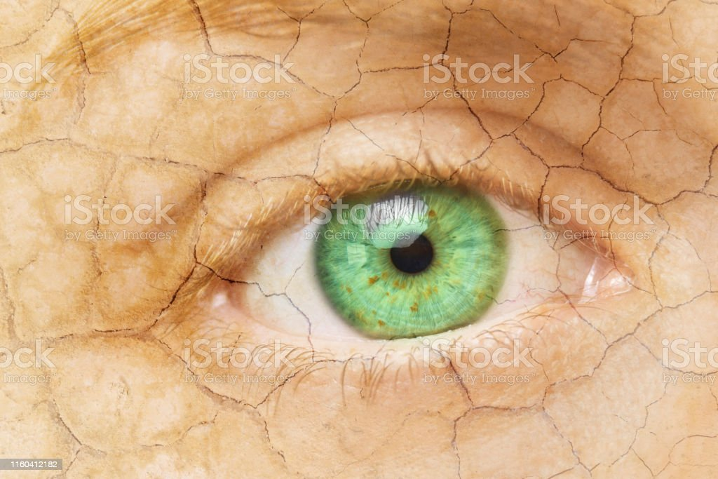 Cracked Skin. Closeup of a female eye with cracked skin. Aging...